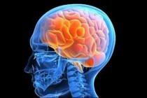 Rehabilitacja dorosłych po uszkodzeniach mózgu Rzeszów